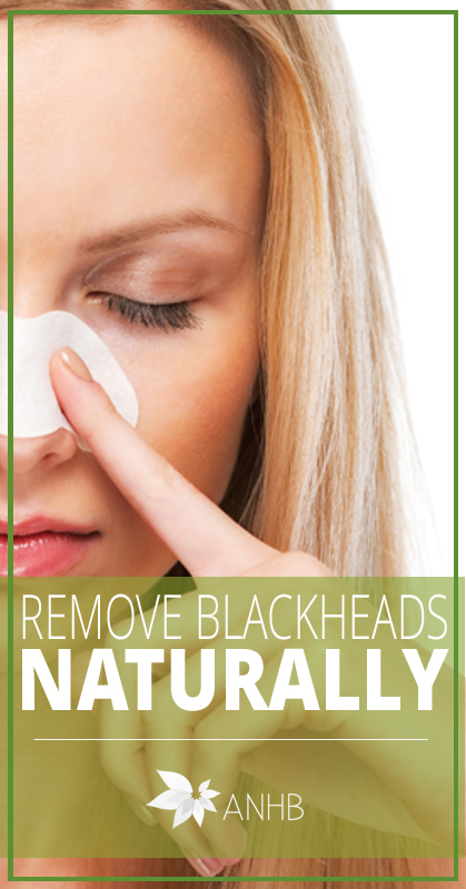 This facial scrub recipe is an awesome way to remove blackheads naturally!