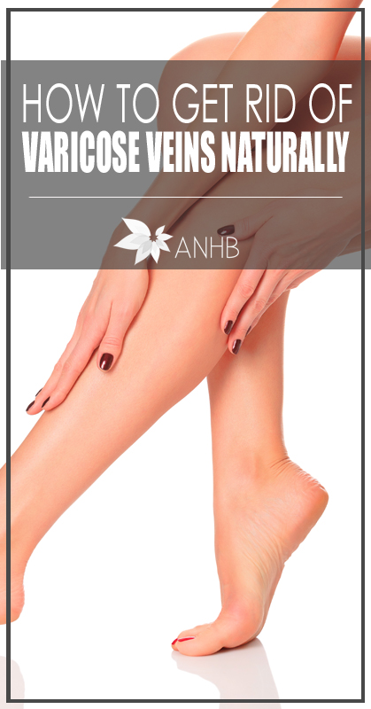 How to get rid of vaircose veins naturally. Good to know!