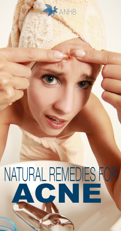 Natural Remedies for Ance #naturalskin #skincare #acne #remedies